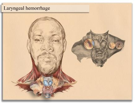 Forensic Artist Illustrations Demonstrative Evidence